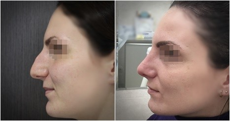 Ринопластика_13 (2 недели после операции)